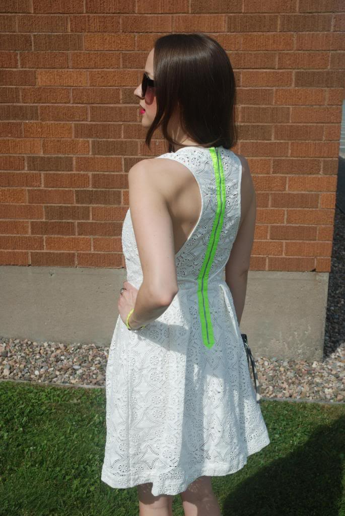 White Lace Dress, Neon, Exposed Zipper, White, Summer Looks, Sun Dresses