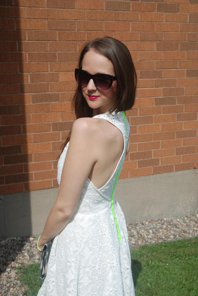 White Lace Dress, Neon, Exposed Zipper, White, Summer Looks, Sun Dresses