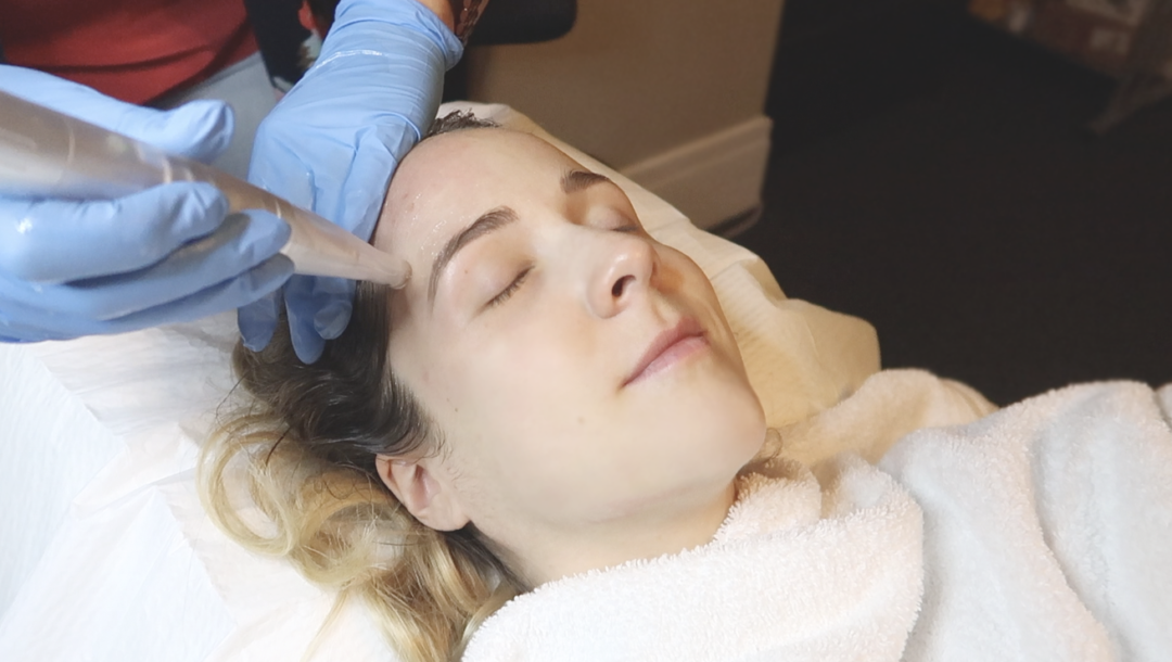 VIDEO: WHAT TO EXPECT FROM MICRONEEDLING (trust me it's not